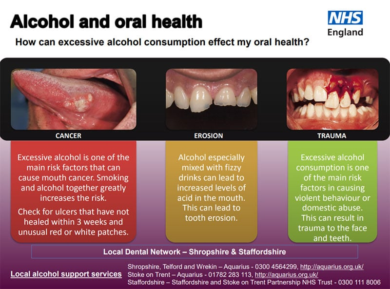 Image about alcohol and oral health