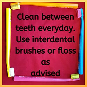 Clean between teeth everyday. Use interdental brushes or floss as advised.