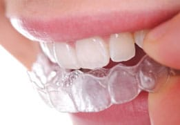 image showing dental appliance