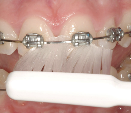 Tepe Implant Ortho