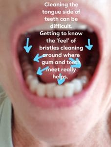 image showing where to clean inside of teeth